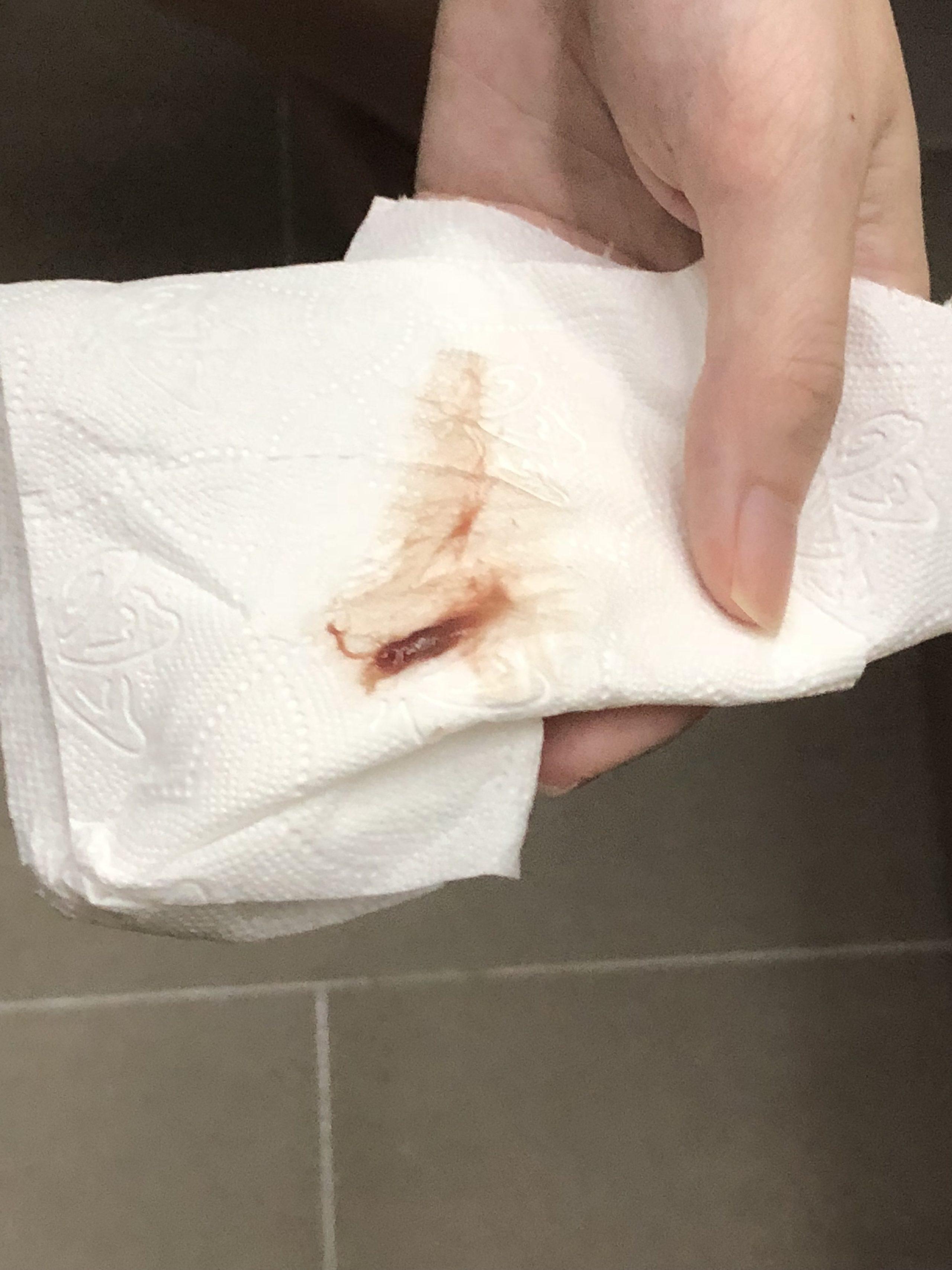 Late Implantation Bleeding